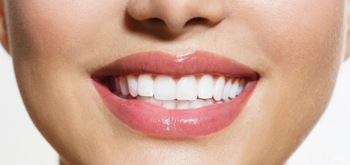 A closeup of a woman's smile.