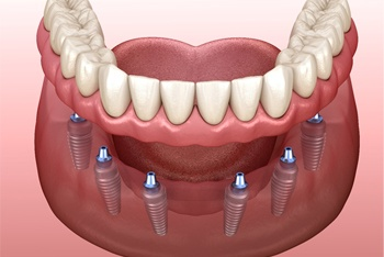 3D image of implant-retained dentures