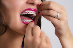 woman flossing braces