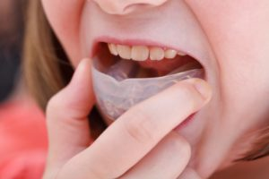 young girl inserting custom mouthguard