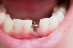 mouth open to receive dental implant